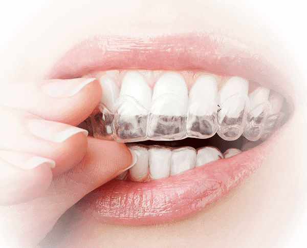 female dental patient wearing transparent clear retainers