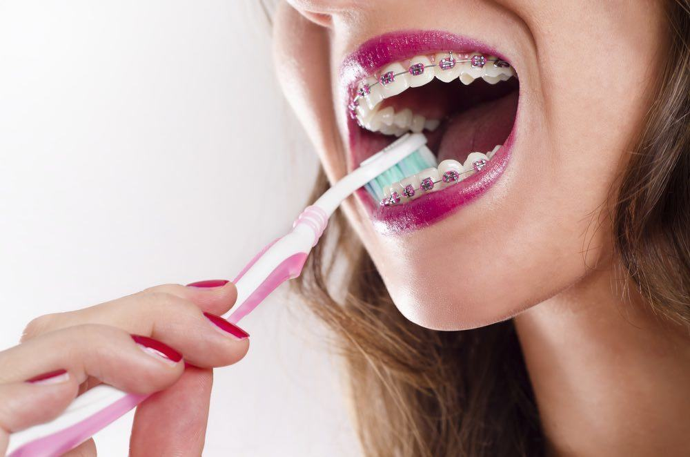 How to properly brush with braces