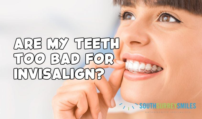 are-my-teeth-too-bad-for-invisalign